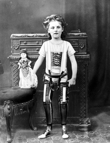 Prosthetic legs in 1900.